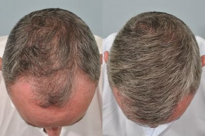 hair-transplant-6-months-post-op-Mark-Berry-1024x680