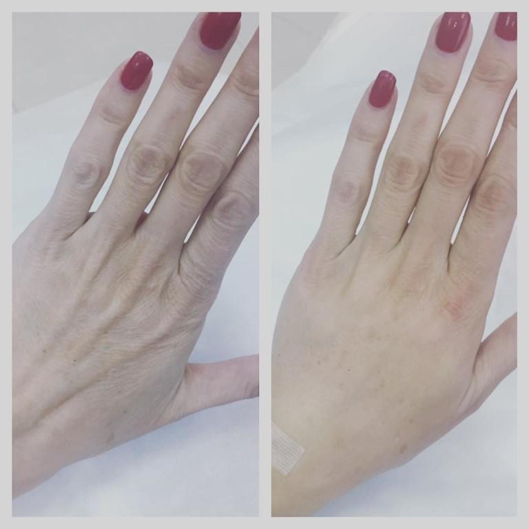 Похудели пальцы при беременности